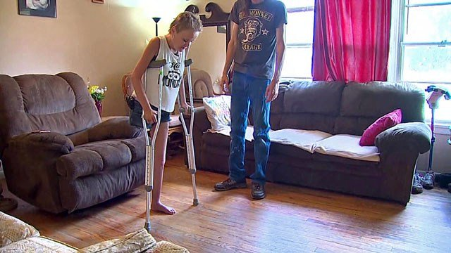 Jennifer Russell practices walking after the amputation of her right leg. (KTEN)
