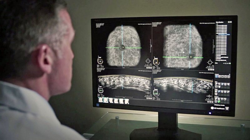 Ultrasound imaging is an alternative to mammography in breast cancer detection. (AllianceHealth Durant)