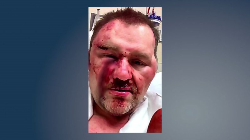 Achille Mayor David Northcutt provided this photo after he said he was beaten at a convenience store in March, 2019. (Courtesy)