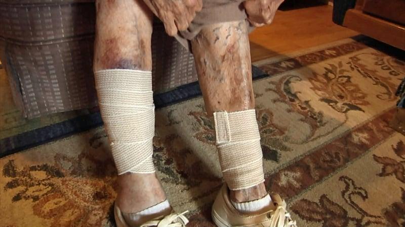 Oleta Bird was bitten on both legs when two dogs attacked her hear her Achille home on September 21, 2019. (KTEN)